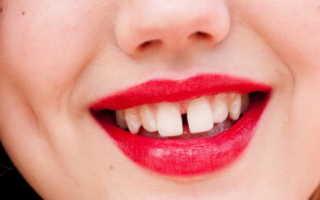 Щель в зубах