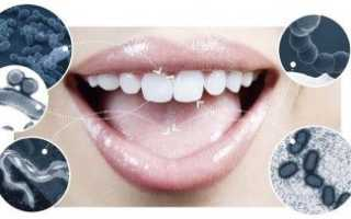 Почему между зубами неприятный запах