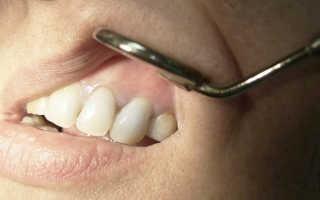 Как проявляется киста зуба