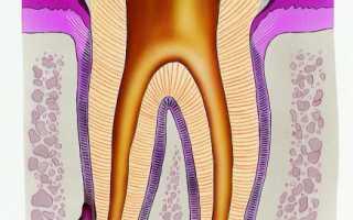 Межкорневая киста зуба лечение