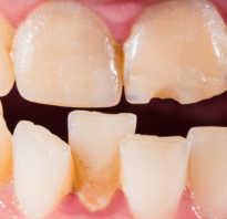 Искривление зубов у взрослых