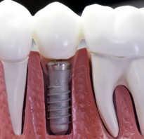 Порядок установки имплантов зубов