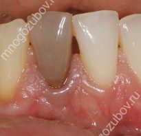 Почему зубы темнеют