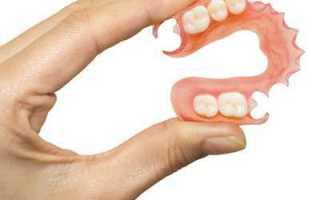 Мягкий зубной протез что это такое