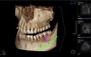 Как делают кт зубов