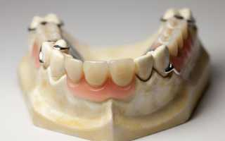 Съемный протез бабочка на 1 зуб