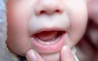 Стоматит у месячного ребенка