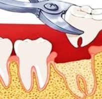 Что делать когда вырвали зуб