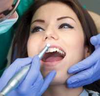 Стоматология киста на корне зуба