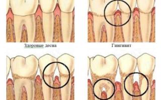 Болит десна между зубами