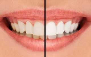 Виды отбеливания зубов в стоматологии
