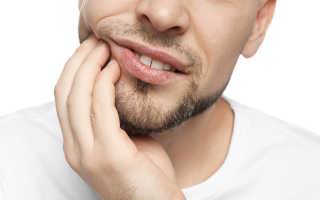 На корне зуба гранулема
