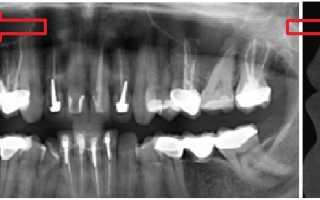 После анестезии болит челюсть