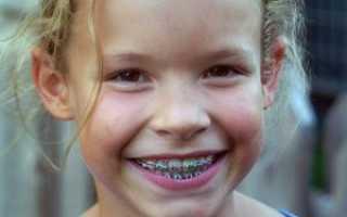 Во сколько лет детям ставят брекеты