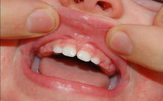 Ребенок порвал уздечку на верхней губе последствия
