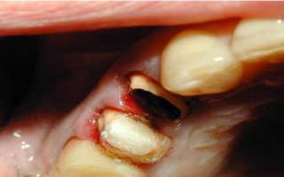 Зуб разрушился до основания что делать