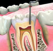 Сколько будет болеть зуб после удаления нерва