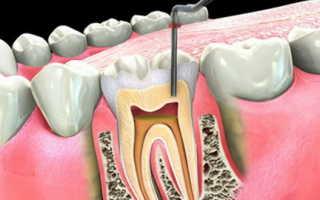 Болит ли зуб после удаления нерва