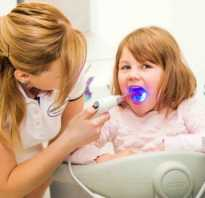 Герметизация фиссур у детей за и против
