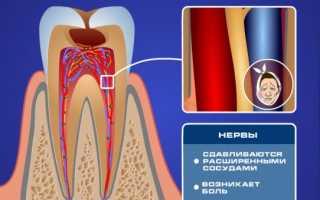 Как лечить чувствительность зубов в домашних условиях