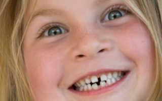 Что делать с кривыми зубами