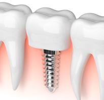 Отторжение импланта зуба симптомы