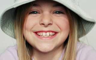 Сроки выпадения молочных зубов у детей таблица