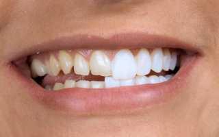 Восстановление зубов винирами