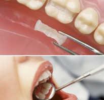 Откололось пол зуба что делать