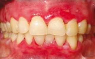 Опухла десна возле зуба