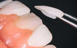Накладки на зубы в домашних условиях