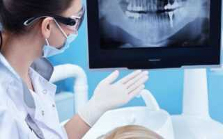 Как часто можно делать рентген зубов