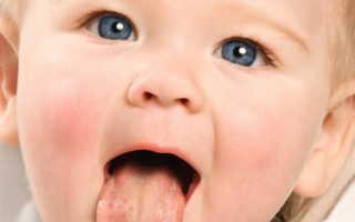 Стоматит у детей до года
