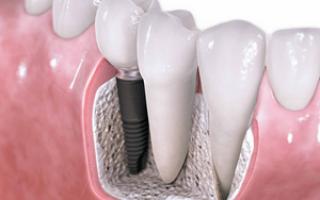 Делать ли имплантацию зуба