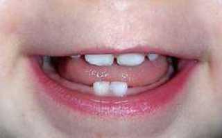 Количество молочных зубов у детей