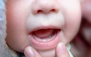 Какие первые зубы лезут у грудничка