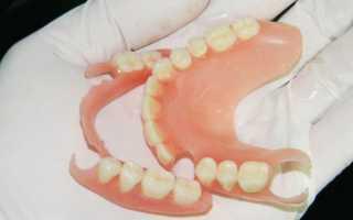 Акриловые протезы плюсы и минусы