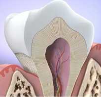 Зуб вылез из десны что делать