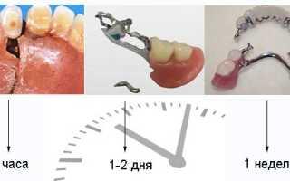 Клей для ремонта зубных протезов из пластмассы