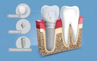 Что ставят на место удаленного зуба