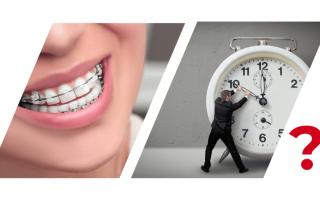 Можно ли выпрямить зубы в 30 лет