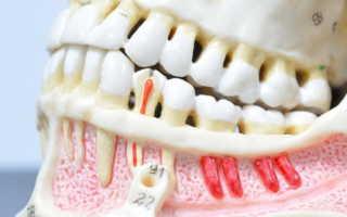 Заболевания зубов и десен