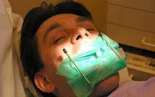 Коронка на мертвый зуб