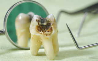 Гнилые зубы у ребенка