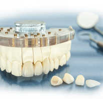 Циркониевая коронка на зуб