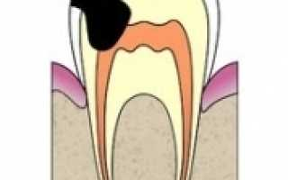 Перфорация канала зуба симптомы