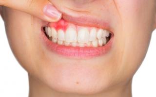 Оголяются зубы десна отходит