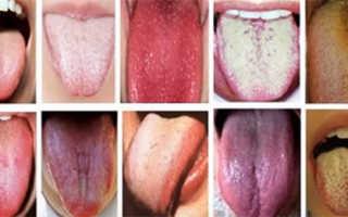 Сыпь на кончике языка