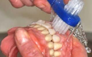 Как носить съемные зубные протезы