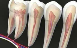 Чем успокоить нерв в зубе